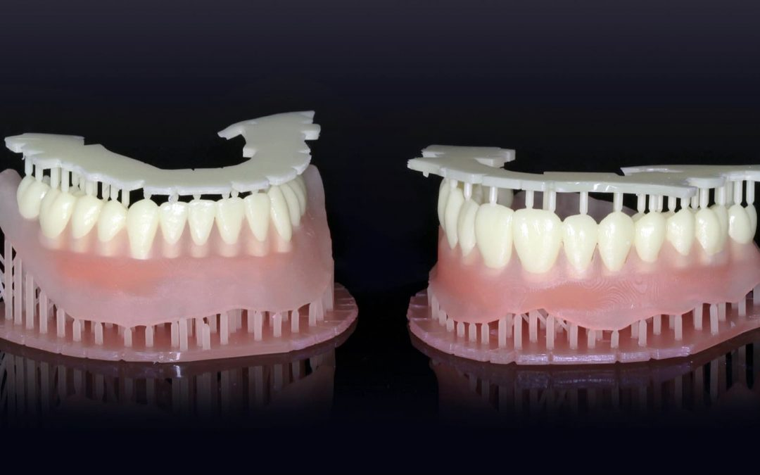 FDA Clears a Material Enabling 3D-Printing of Dentures